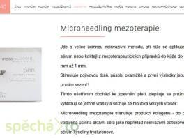 Microneedling mezoterapie Praha , Wellness a péče o zdraví, Kosmetika  | spěcháto.cz - bazar, inzerce zdarma